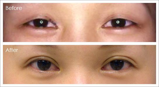 全開式雙眼皮
