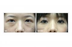 經結膜眼袋去除(內開式)