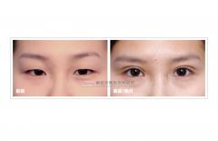 提眼瞼肌+雙眼皮