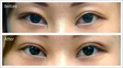雙眼皮重修