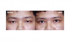 雙眼皮、提眼肌