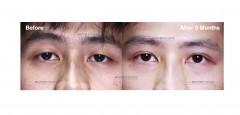 眼部綜合:雙眼皮、提眼肌、提眉