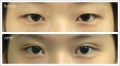 微創式小切口雙眼皮